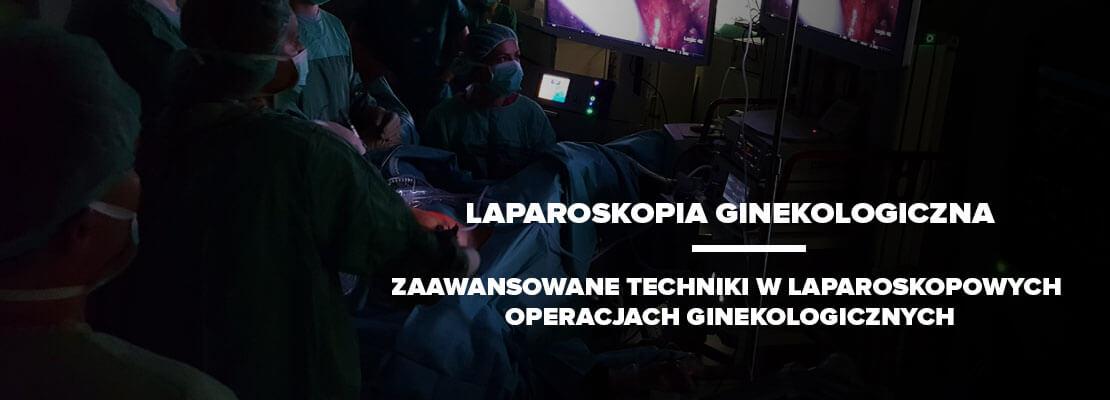 LAPAROSKOPIA GINEKOLOGICZNA - Zaawansowane techniki w laparoskopowychoperacjach ginekologicznych